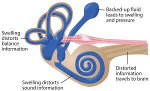 menieres disease causes