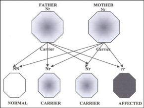 Usher Syndrome Hereditary
