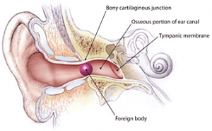 conductive hearing loss surgery