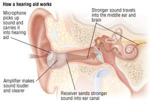 conductive hearing loss treatment